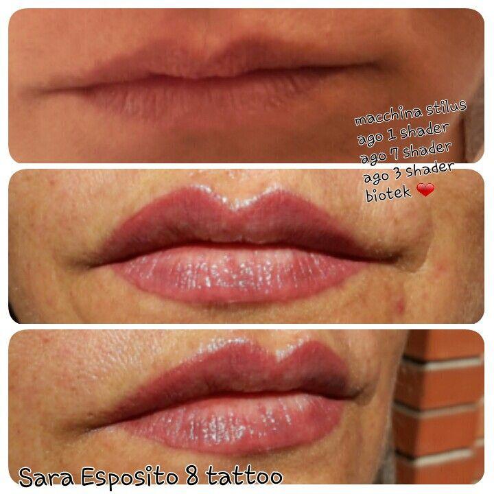 Riempimento labbra!!biotek 3920178825