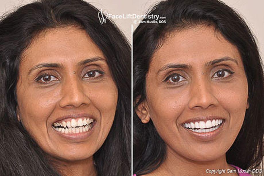 Correcting a gummy narrow smile dentistry face lift