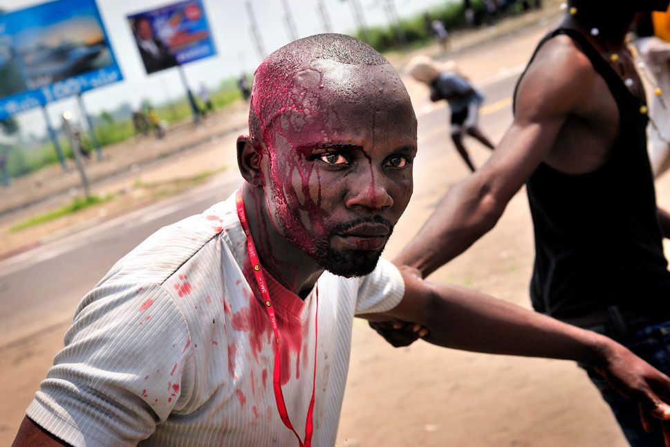 DEMOCRATIC REPUBLIC OF THE CONGO - Above, a bloodied supporter of the Union for Democracy and Social Progress is helped by a friend after clashes with police and army forces in Kinshasa, the capital, on Nov. 26, 2011. The supporters were waiting for the main opposition leader, Etienne Tshisekedi, who was not allowed to hold a rally in town.