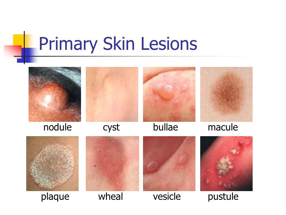 Primary+Skin+Lesions+nodule+cyst+bullae+macule+plaque ...