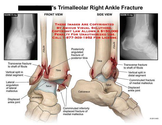 Trimalleolar Ankle Fracture 2015 Summer Ms Rotation Pinterest