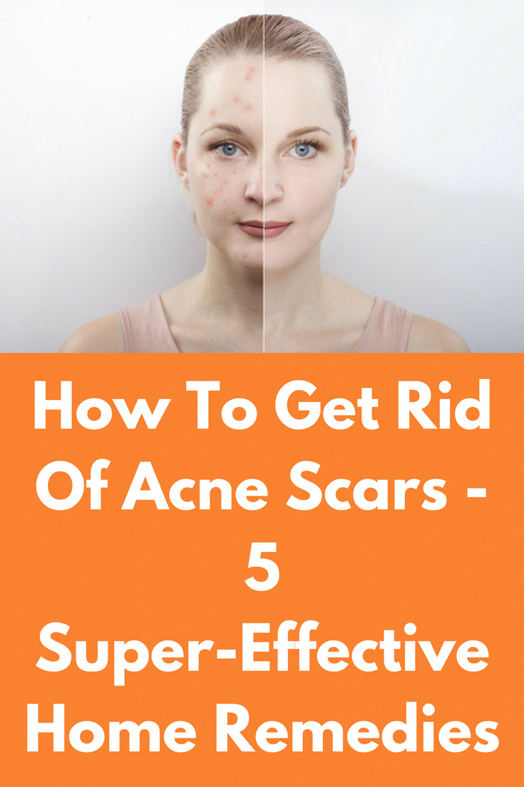 d8f77af36331090c4e2d39ed671d8c44 - How To Get Rid Of Back Acne Scars Home Remedies