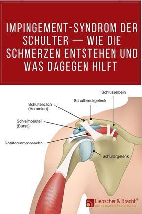 Impingement-syndrom in der schulter