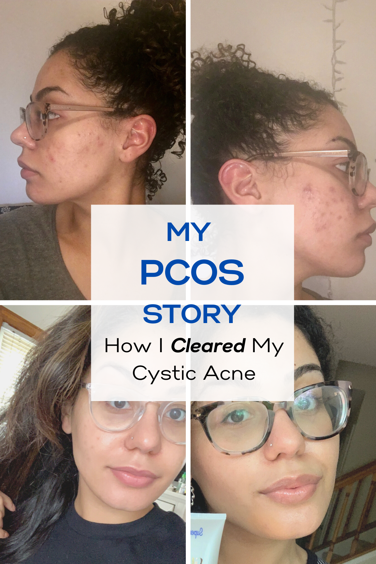 My Pcos Story Cystic Acne Acne Vulgaris Treatment Treating Cystic Acne