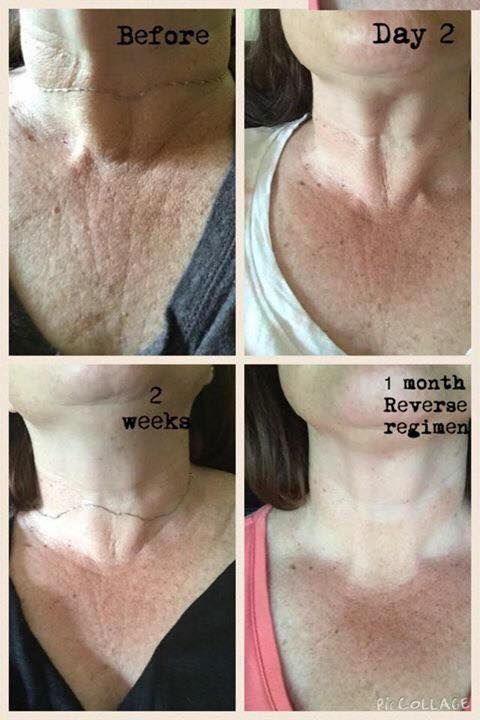 R F Reverse Regimen Used On The Chest Area Skinlove In