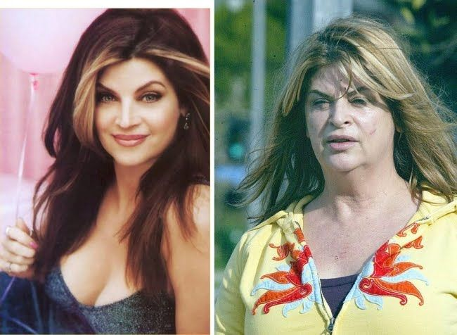 23 Best Plastic Surgery Gone Wrong images | Bad plastic ...