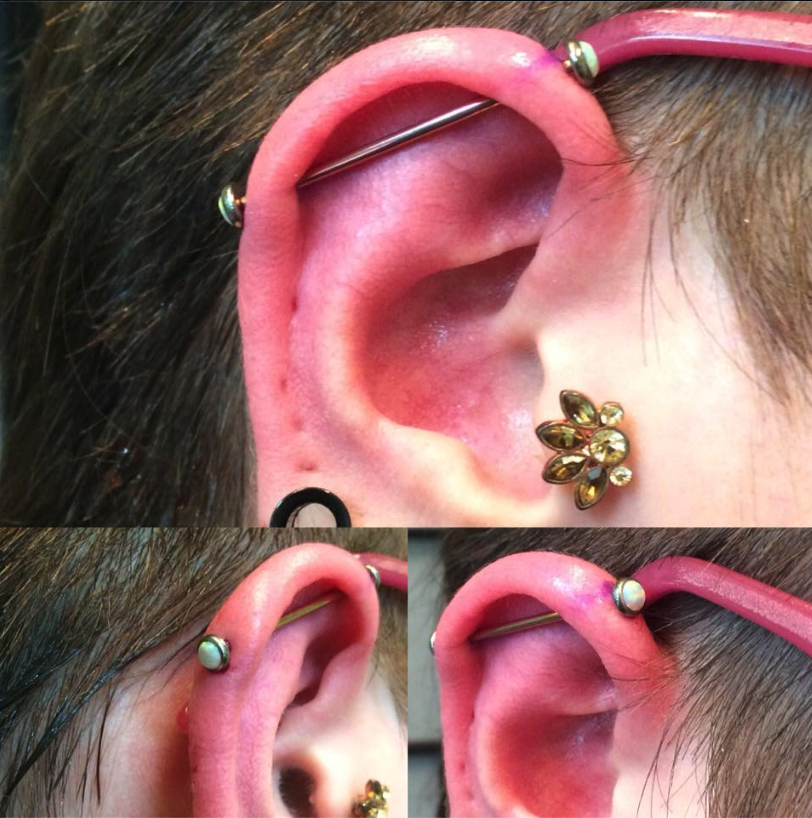 Fresh And A Wee Swollen Industrial On Professionally Overambitious With A Pink Titanium Anodized Bar And 5mm White Forward Helix Piercing Cartilage Piercing