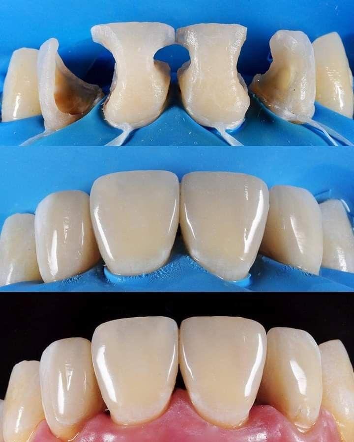 Pin by Dentistry Buzz on DENTISTRY BUZZ Dental, Dental