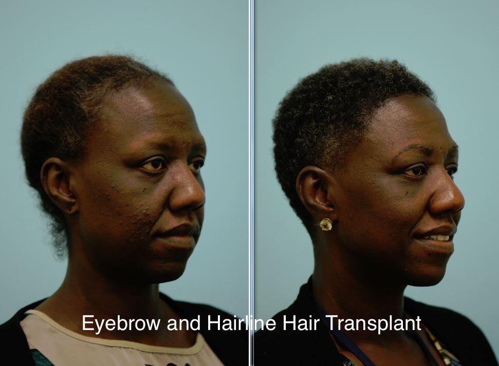 Eyebrow Hair Transplant by HairTX | Eyebrow hair ...