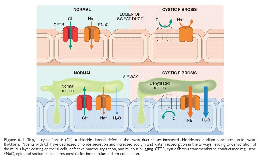 Lovely Image For The Physiopathology Of Cystic Fibrosis Robbins