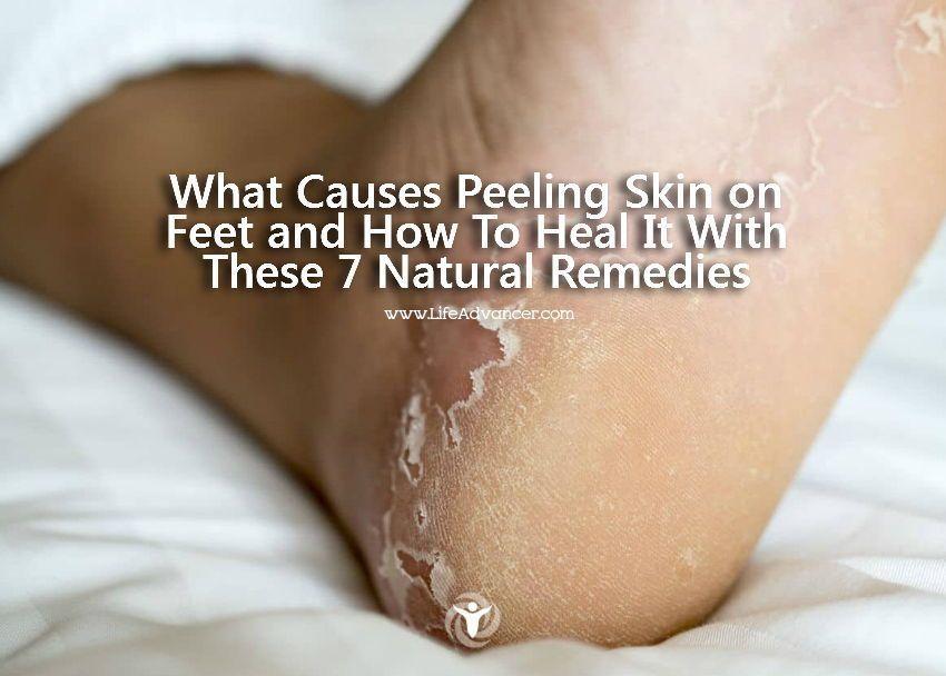 d911f4f1fd4b043cd71fee42b30c8889 - How To Get Rid Of Dry Scaly Skin On Feet