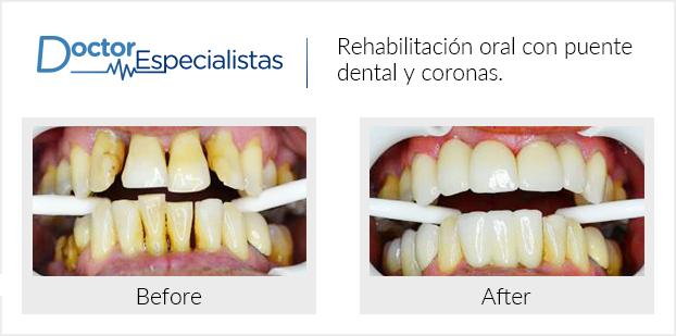 Ve los antes y después de pacientes que utilizaron Doctores Especialistas para encontrar la mejor clínica dental.