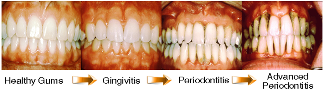 If Gingivitis Goes Untreated It Can Lead To A Number Of Other Oral Infections And Conditions Gum Disease Poor Nutrition Gingivitis