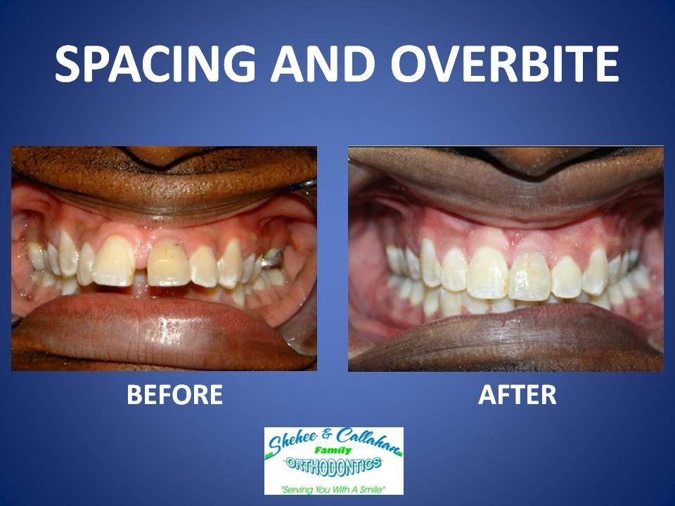 Overbite braces crooked teeth