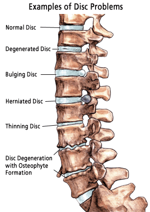 Brain Nervous System Herniated Disc Between S And L Symptoms Of Lumbar Ddd Intervertebral Discs Serve As Shock Absorbers