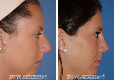 Rhinoplasty Chin Implant Before And After Rhinoplasty Patients Dr Portuese Facial Implant Plastic Surgery Rhinoplasty