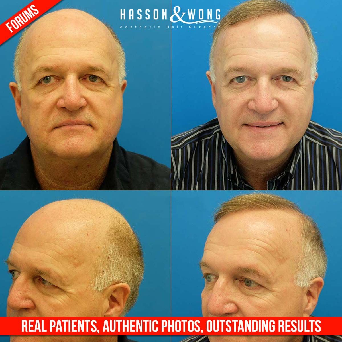 Real Patients Real Results Check out this forum entry for more