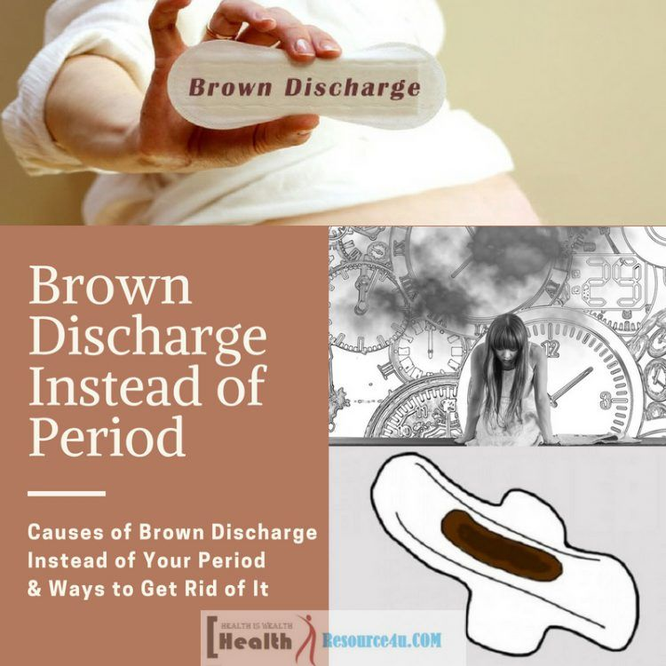 Causes of Brown Discharge Instead of Your Period & Ways to Get Rid
