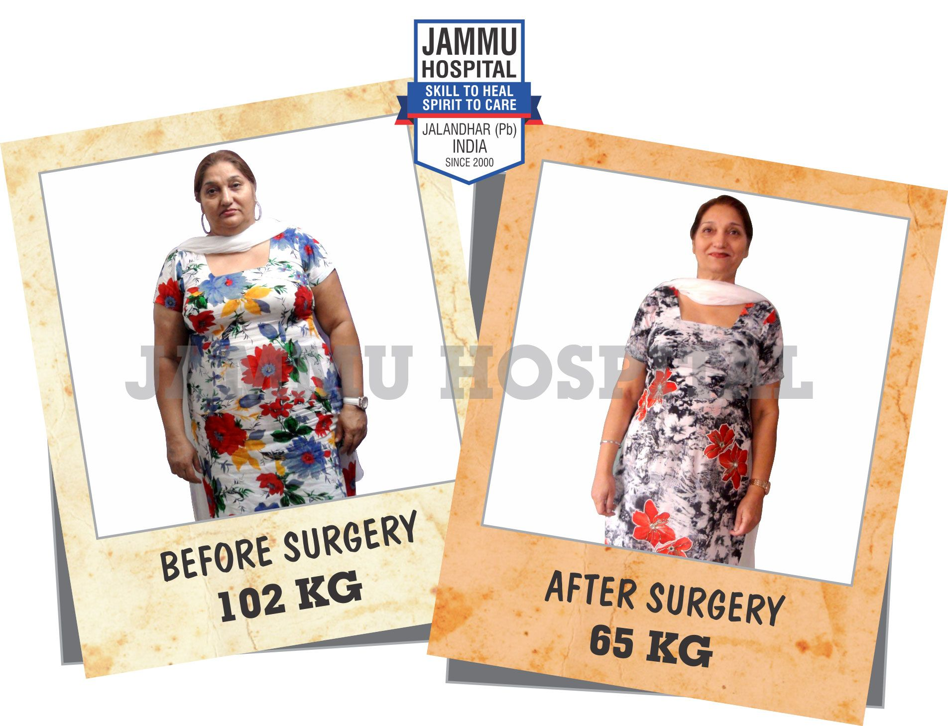 Pin on Bariatric Surgery India Punjab