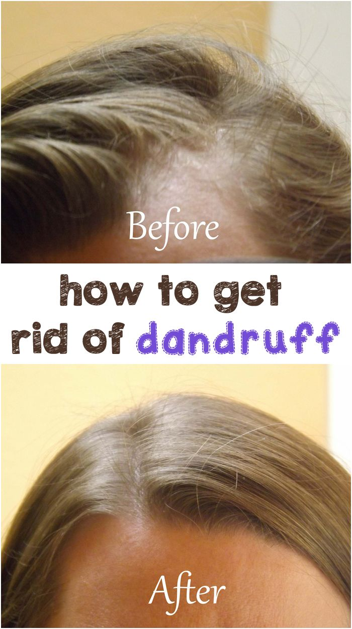 How to get rid of dandruff 49