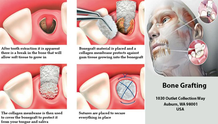 Bone Grafting Cosmetic Dentistry Auburn Wa All On 4 Dental Implants Bone Grafting Cosmetic Dentistry Perfect Teeth