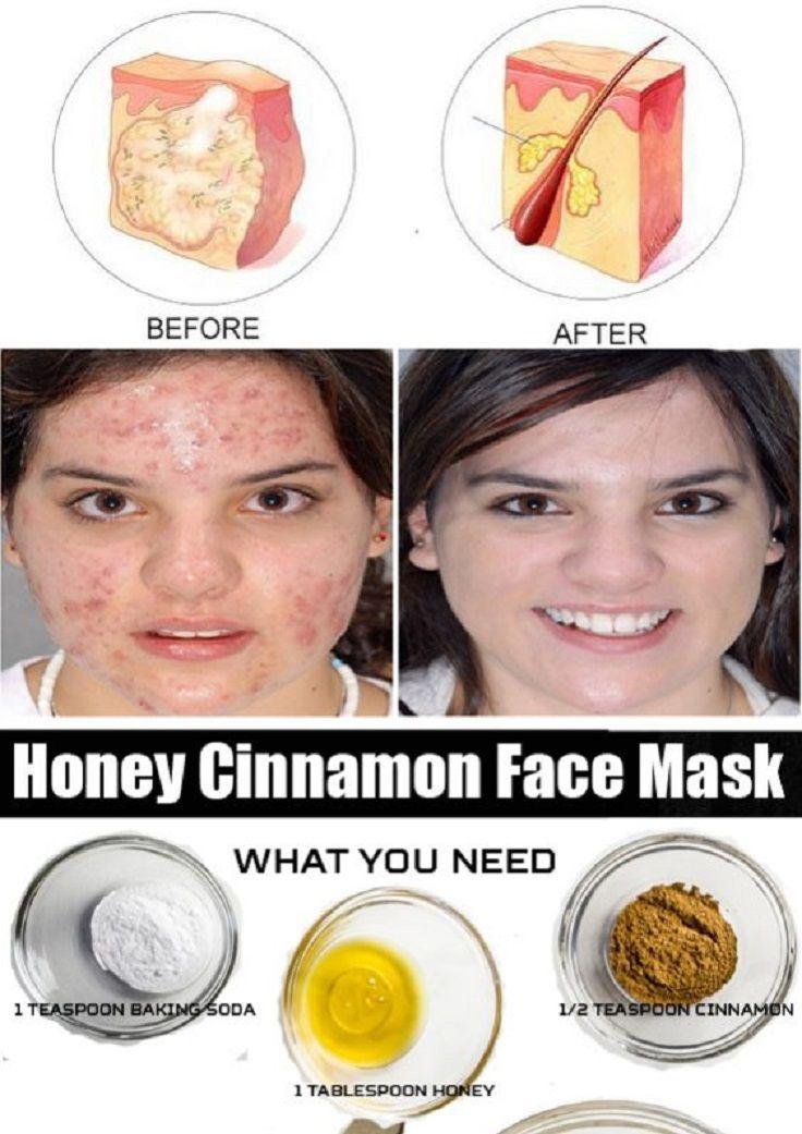 11 antiinflammatory diy acne remedies to get clean skin