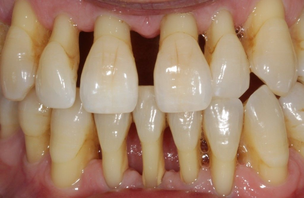 odc fact mobility is an indicator of bone loss around the tooth