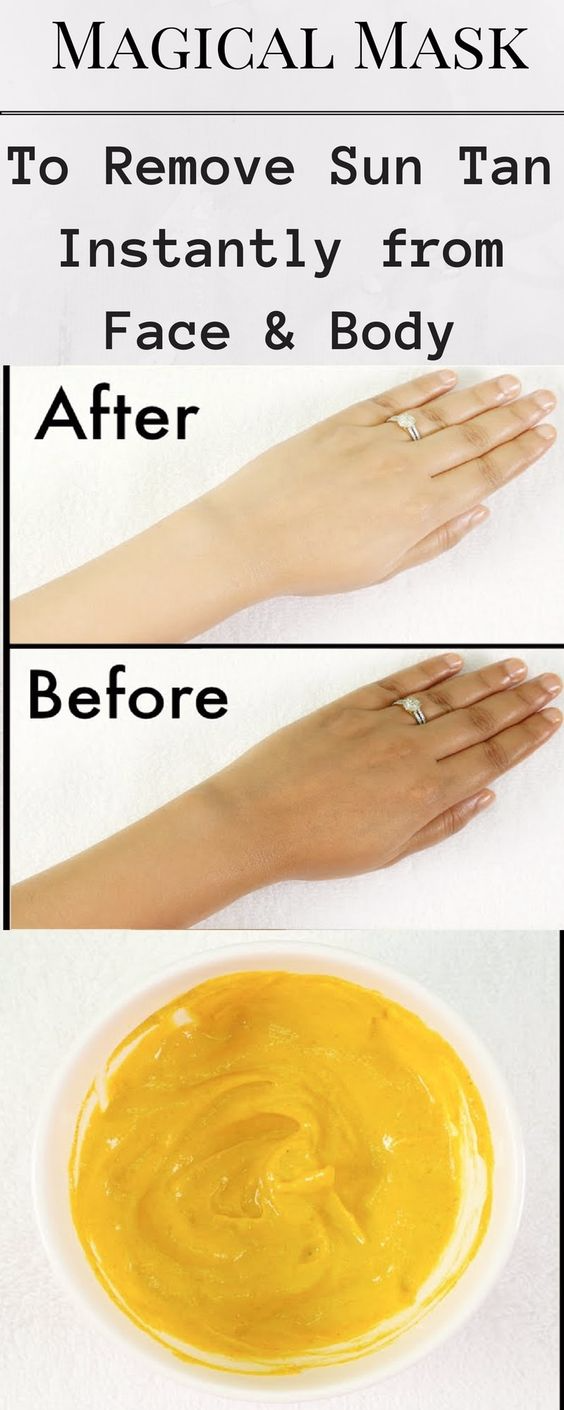 How To Get Rid Of A Sun Tan Fast