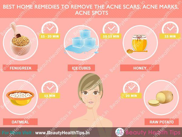 Best home remedies in Hindi to remove the acne scars  acne marks  acne spots. Hindi tips for black spots   pimples on face