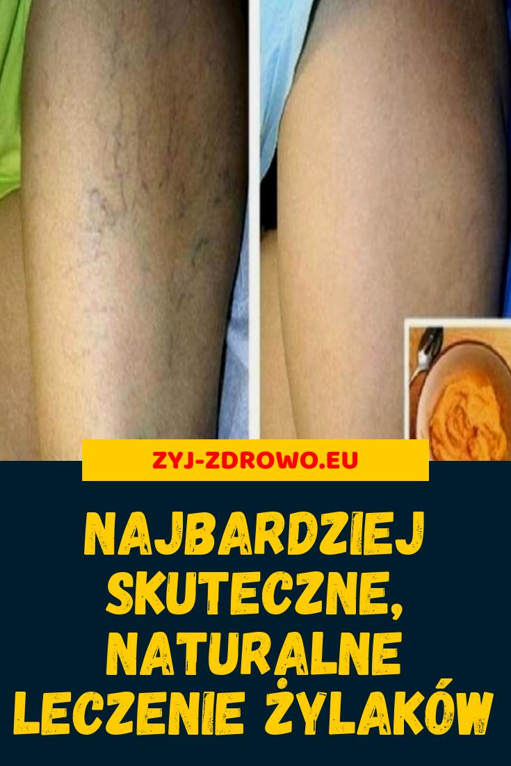 Pin By Anna Adamska On Zdrowie I Dieta Health Beauty Health Detox