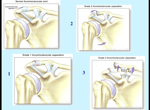 reference for common shoulder pathologies and how to treat in therapy.