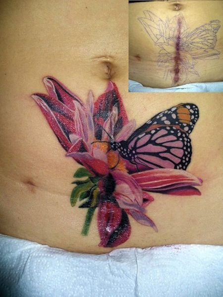 e13aa631ab beautiful scar cover up tattoos egodesigns | Butterfly tattoos ...