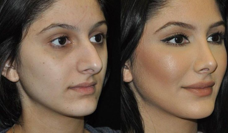 One of our beautiful patients before and after