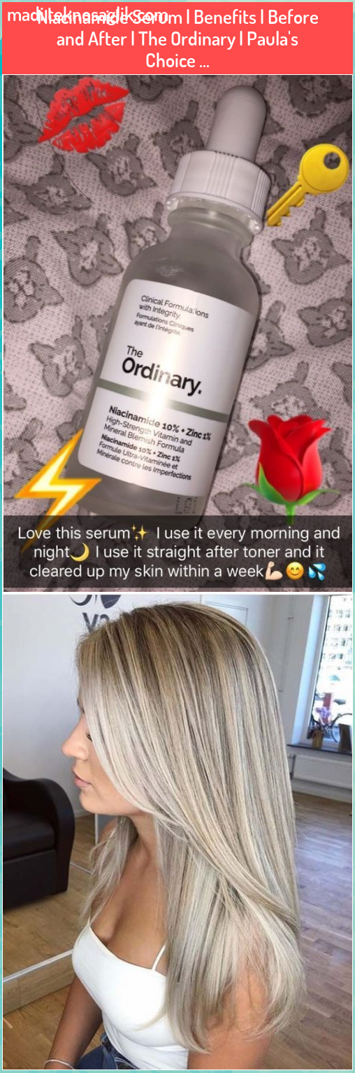 Niacinamide Serum Benefits Before and After The