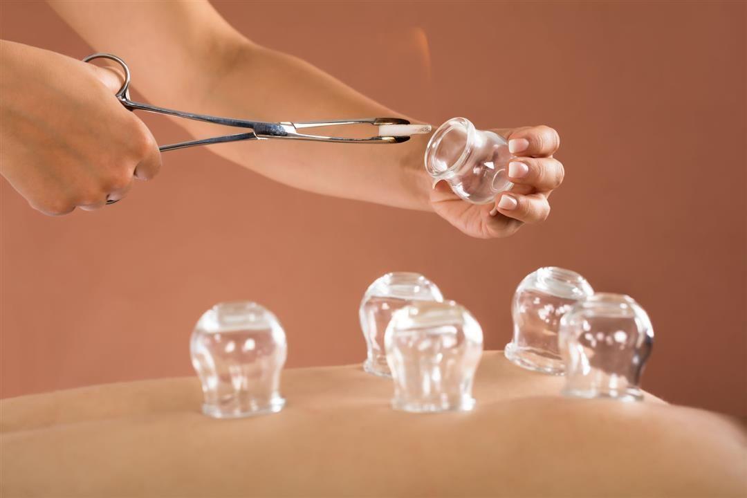 كاسات الهواء الصينية العلاج البدائي الأسرع Cupping Therapy Cupping Treatment Hijama