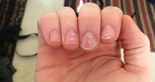 d948df42707bf21c9fca3041e051783e - How To Get Rid Of White Spots On My Toenails