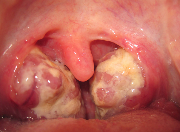 Puss in throat picture 4
