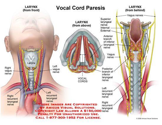 Vocal Cord Paresis | Visualisation | SLP | Pinterest | Medical ...