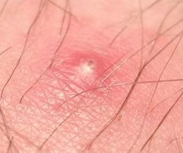 Ingrown Hair, Ingrown Hair Remedies
