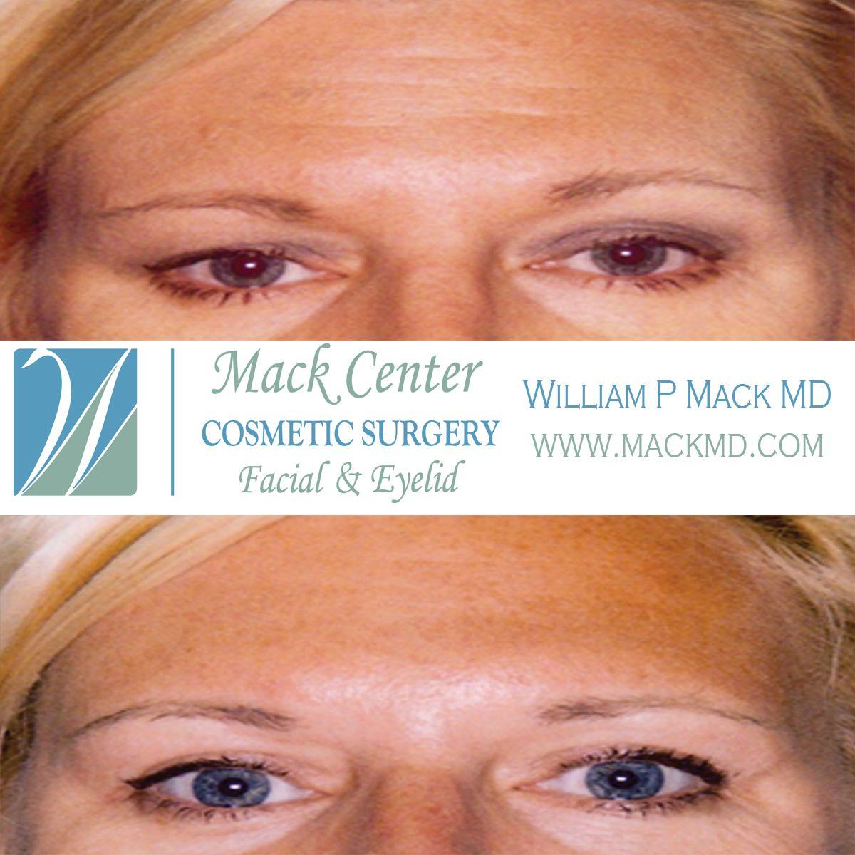 Cosmetic dentist facial symmetry idea
