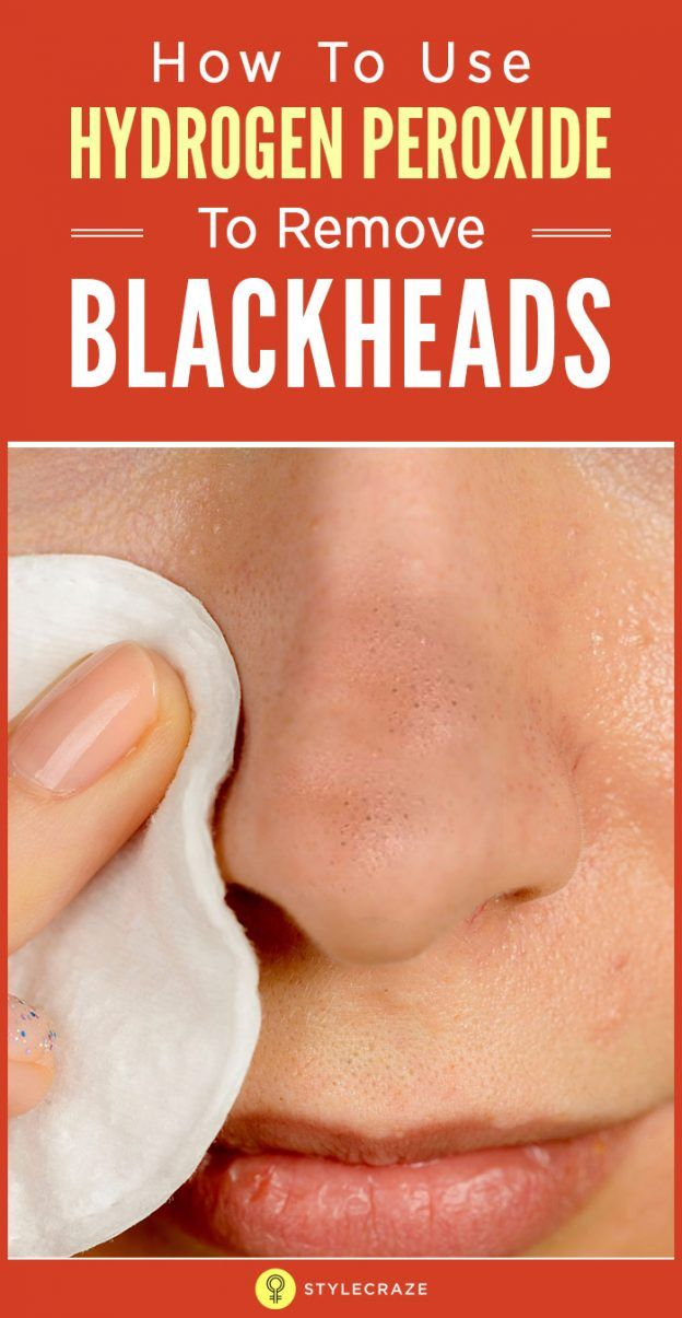 How To Use Hydrogen Peroxide To Remove Blackheads Facial Care