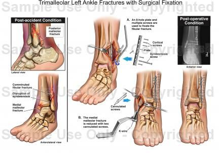 Trimalleolar Left Ankle Fractures With Surgical Fixation Why I M