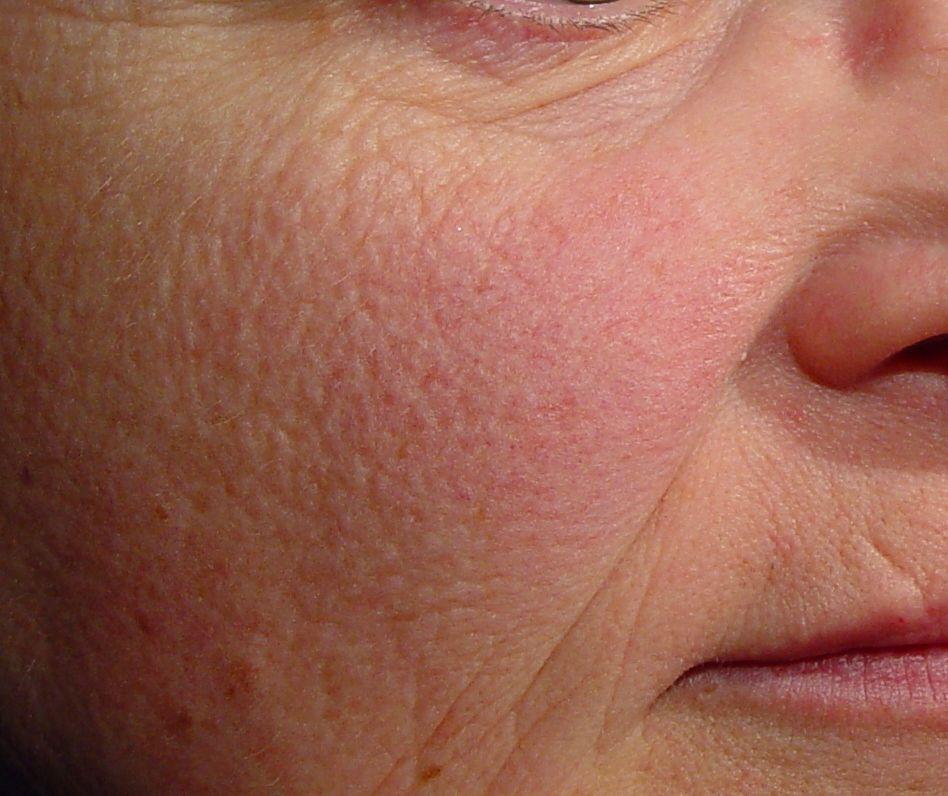 Facial skin texture