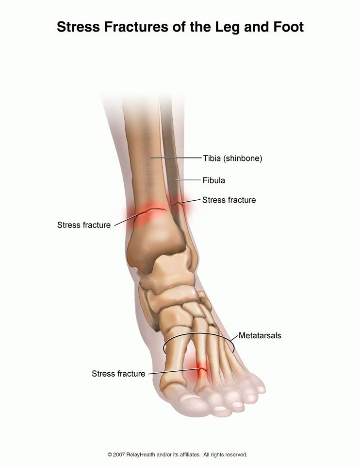 stress fracture of the tibia stress fractures running injury Anterior Tibia Fracture stress fracture of the tibia stress fractures