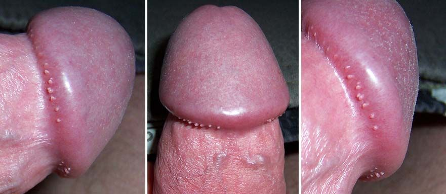 Can women get pearly penile papules
