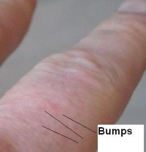 itchy blisters on hands - Google Search | Itchy hands ...