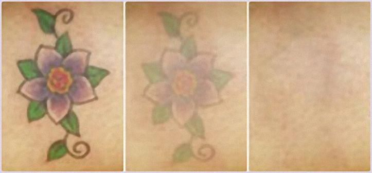 how long does it take to remove a tattoo with lemon and salt