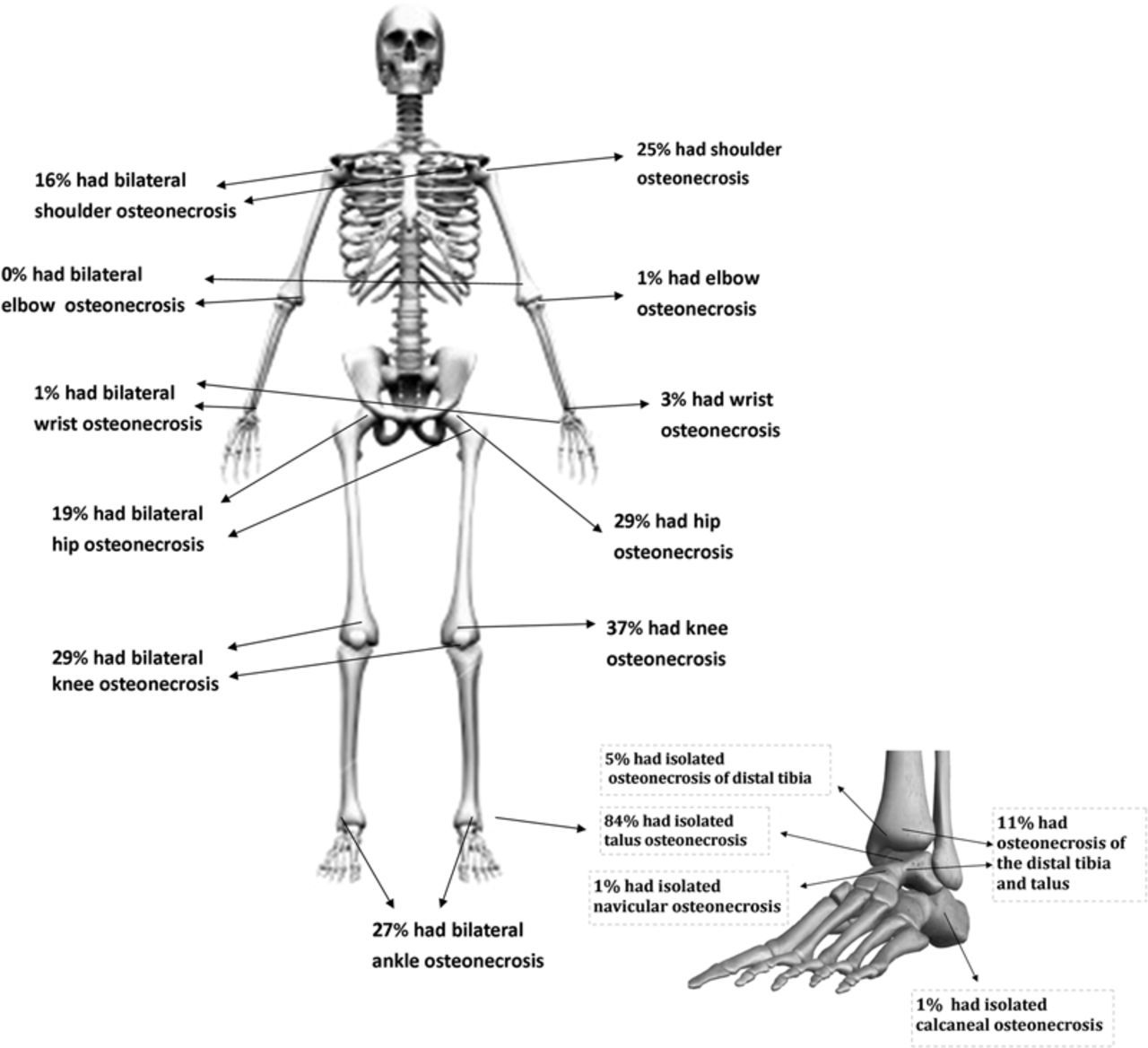 images about bones on, schematic