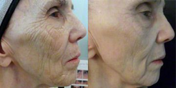 Read 48 reviews of Microneedling, including cost and before and after photos, submitted by members of the RealSelf community.