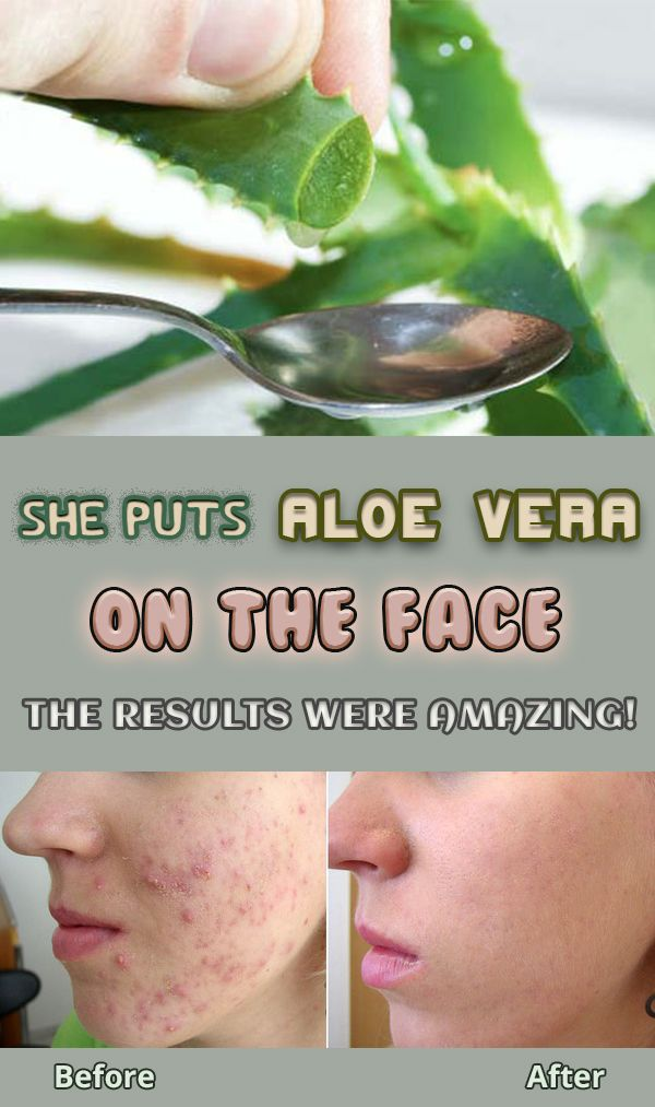 She Puts Aloe Vera On Her Face For 7 Days See The Results Aloe Vera For Face Aloe Vera For Skin Aloe Vera Skin Care